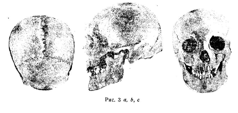 Хазарские черепа